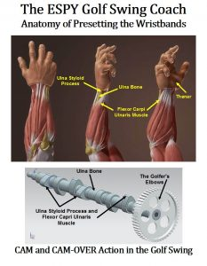 Flexor Capri Ulnaris muscle