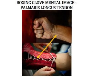The Palmaris Longus (Palmer) Tendon located on the medial side (inside) of the golfer's wristband. This tendon is located where the boxing glove split is in order to lace up the boxing gloves.