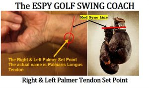 The critical Palmeris longus tendon used to Sync/Preset the forearm and wrists.