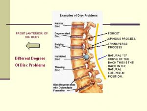Disc and lower back issues that can cause pain and debilitating issues